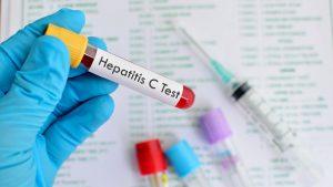 cara mengobati penyakit hepatitis